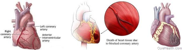 Indications for a Heart Attack